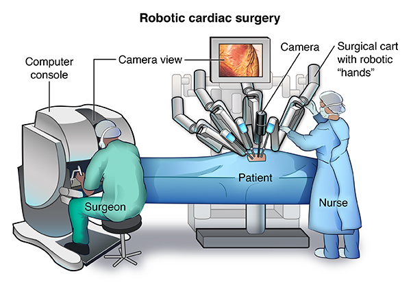 Robotic Cardiac Surgery